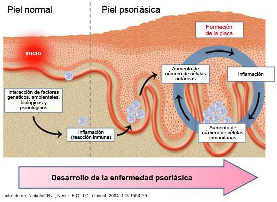 Que es útil la seta de té a la psoriasis
